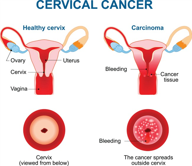 the screening of cervical cancer Learn about screenings and tests for early cancer detection screening for breast cancer, colon and rectal cancer, lung cancer, cervical cancer, uterine cancer, and.